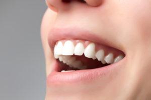 Was hilft gegen Zahnstein