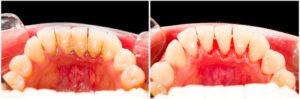Zahnstein selber entfernen